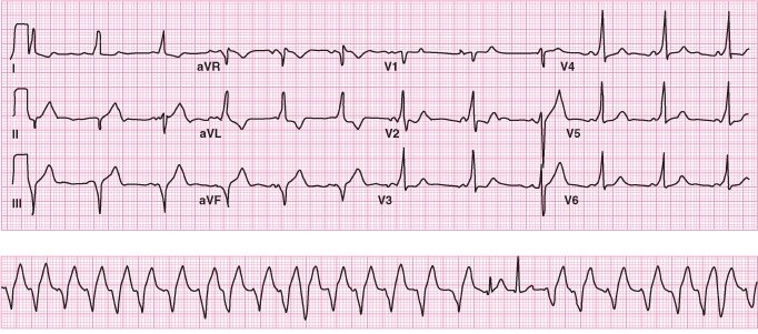 High Yield Electrocardiographs for the Step 2 CK Exam-wpw.jpg
