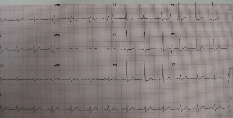 Delta and Osbourn Waves in the EKG-wpw09.jpg