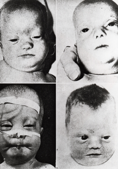 High yield images of typical Facies in dysmorphic children-zellweger_syndrome.jpg